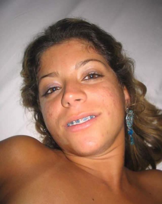 Emelina Braces Bra Nice Latina Showing Pussy Showing Tits